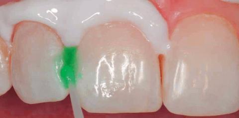 лечение кариеса без сверления icon